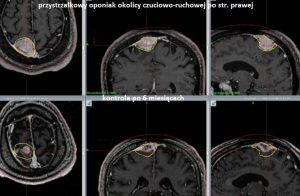 RTG mózgu